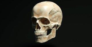 cranio-4073374__340.jpg